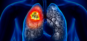 Segmentectomia Pulmonar