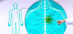 Simpatectomia Torácica Por Videotoracoscopia