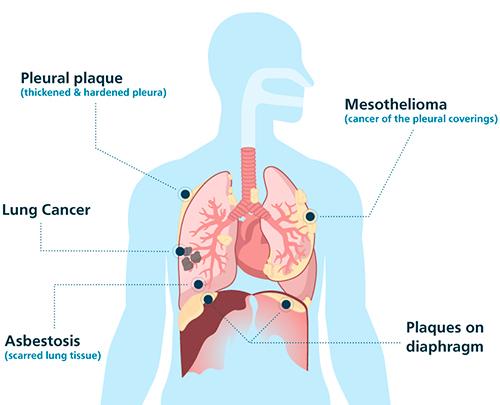 Tumor Na Pleura
